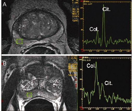 expectro-prostata-511x426